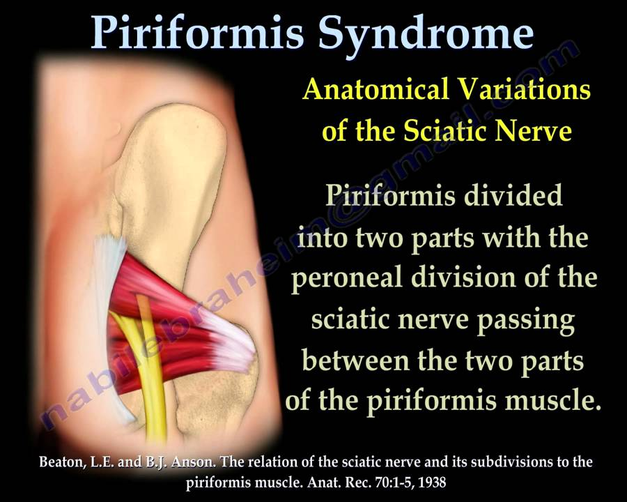 Piriformis Syndrome , sciatica - Everything You Need To Know - Dr ...