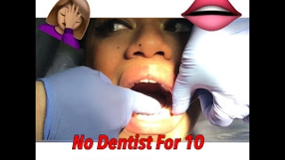 NO DENTIST FOR 10 YEARS?! I CAN'T BELIEVE WHAT MY MOUTH LOOKS LIKE
