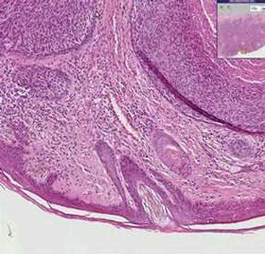 Histopathology Skin, lip--Basal cell carcinoma