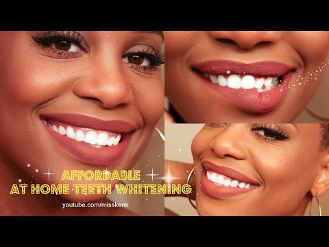 Affordable at Home Teeth Whitening | Vanity Planet