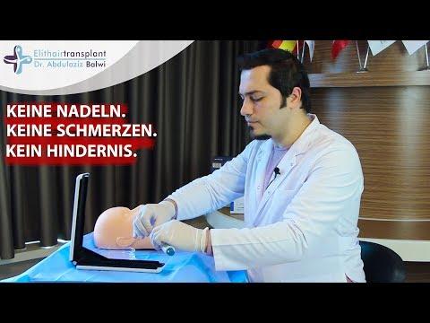 Dr. Balwi erklärt: Haartransplantation ohne Schmerzen | Elithairtransplant