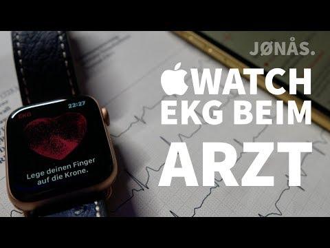 Apple Watch EKG Vergleich mit dem EKG beim Arzt