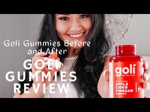 goli-gummies-review-|-are-these-apple-cider-vinegar-gummies-legit-to-lose-weight