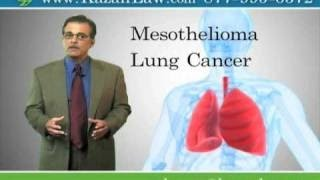 Asbestos Exposure Causes Lung Cancer and Mesothelioma- Video