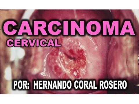 CARCINOMA CERVICAL - CANCER DE CUELLO UTERINO