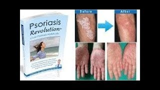Psoriasis Revolution Review - Does It Work or Scam?