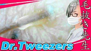 353 [200x Zoom] Inside the pores Dr. tweezers 毛抜き先生の角栓や毛根