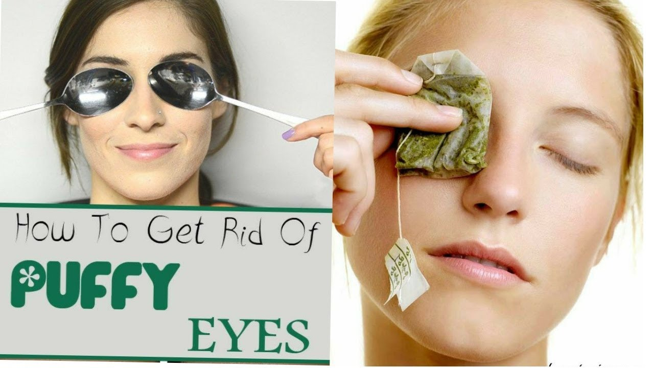 Easy Home Remedies To Cure Puffy And Swollen Eyes Youtube