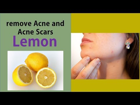 How to Use Lemon Juice to remove Acne and Acne Scars - Treating Acne and Acne Scar