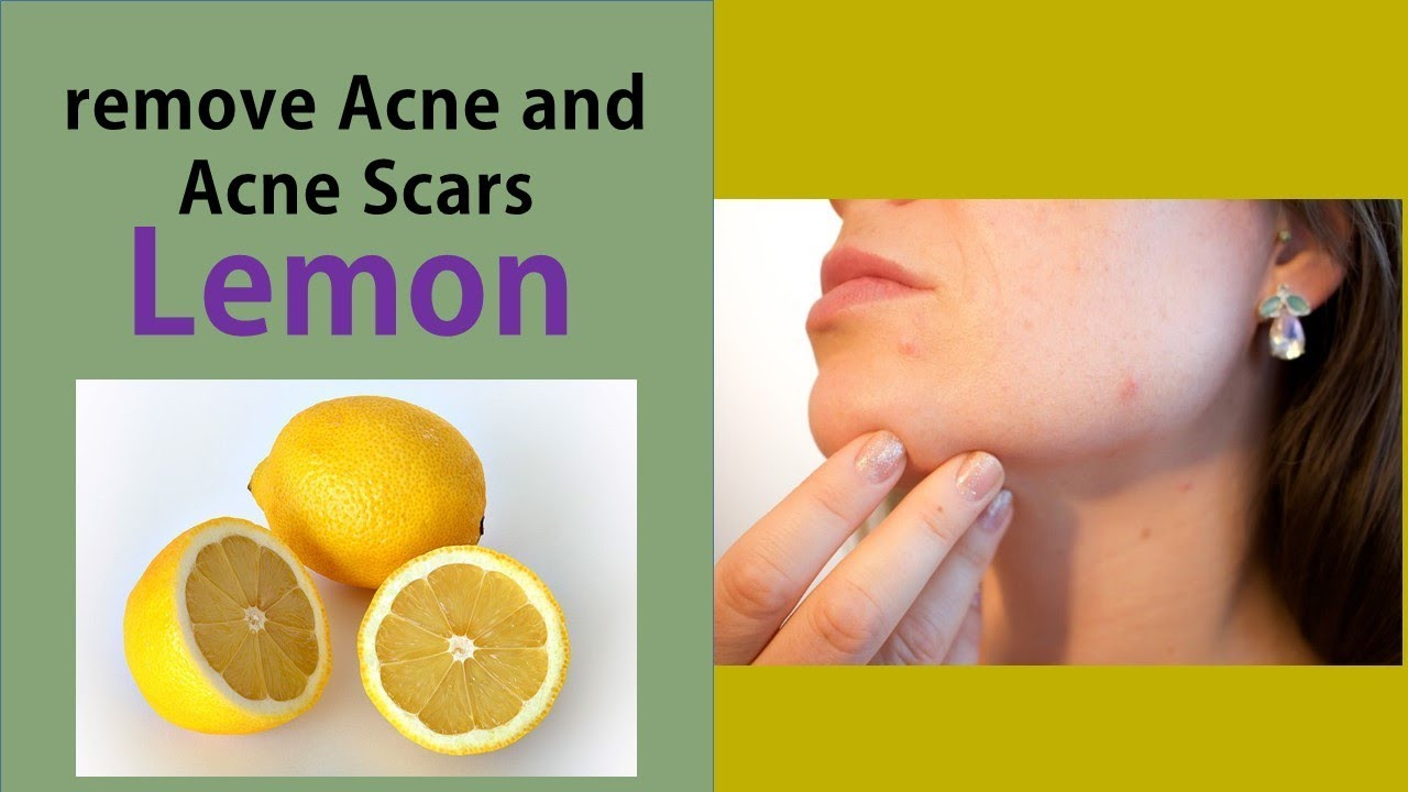 how to use lemon juice to remove acne and acne scars - treating acne