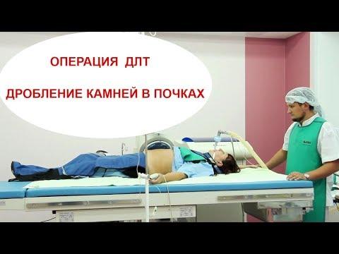 Как проходит операция по ДЛТ - Дистанционная литотрипсия  - дробление камней в почках и мочеточниках