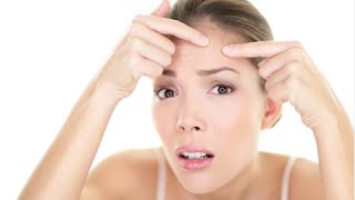 How Prevent Pimples Naturally