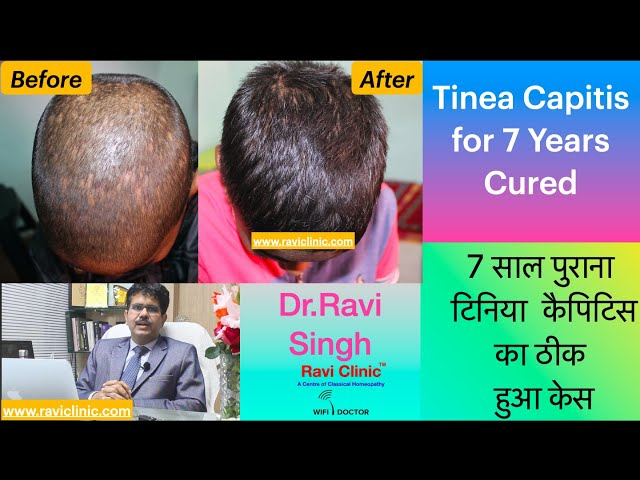 Tinea Capitis or Ringworm of Scalp for 7 Years Cured
