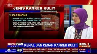 Kanker Kulit Melanoma - Salah Satu Kanker Paling Mematikan - dr. Afaf Agil Al Munawwar, Sp.KK.