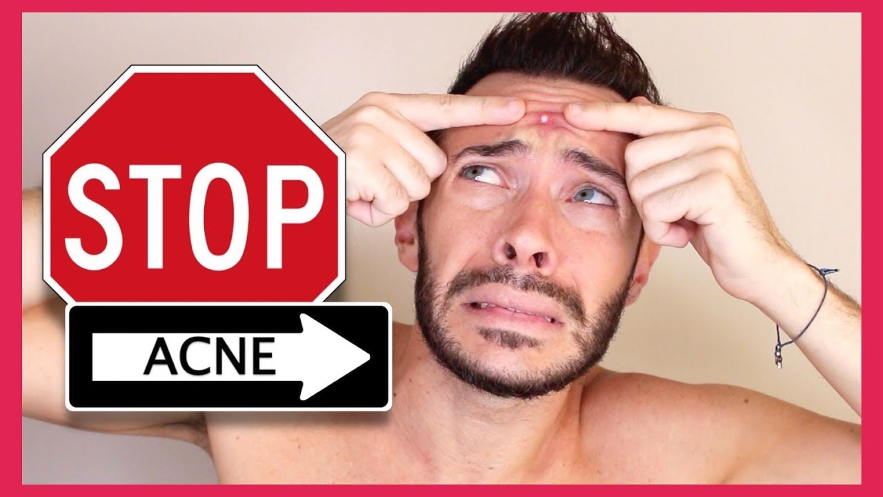 How to get rid of chin strap acne