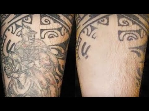 Tattoo Removal Jacksonville FL - Tattoo Removal In Jacksonville ...