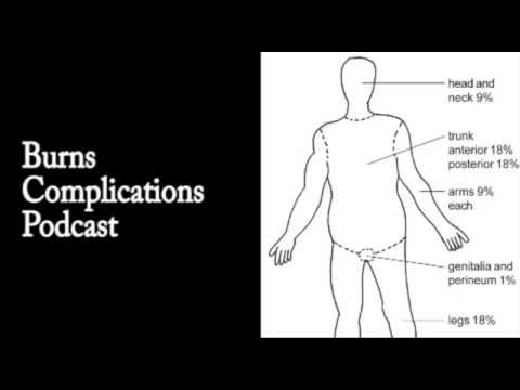 Burns Complications  Podcast
