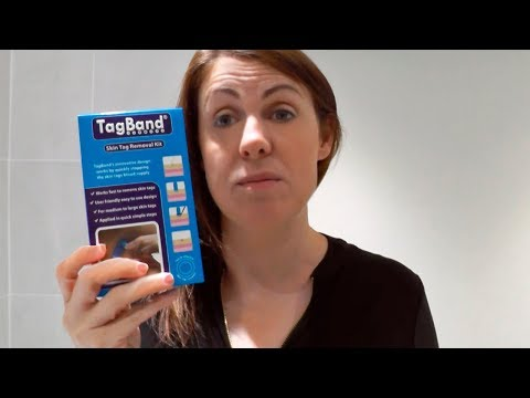 Tagband Review For Skin Tag On Neck