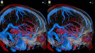 Arteriovenous Malformation (AVM) - 3D Virtual Tour | UCLA Neurosurgery