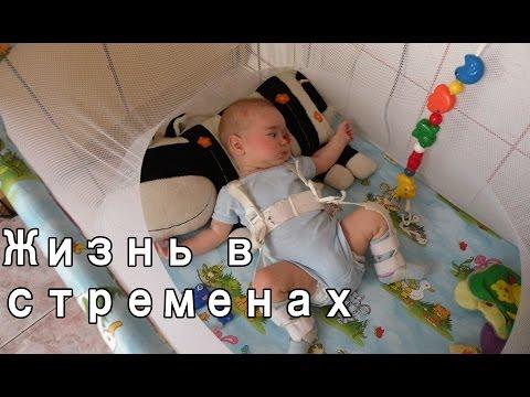 Дисплазия шейки матки – причины, симптомы, лечение и 1, 2