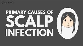 Primary causes of scalp infection