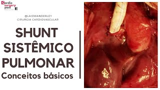 Shunt sistêmico-pulmonar: conceitos básicos (videoaula)