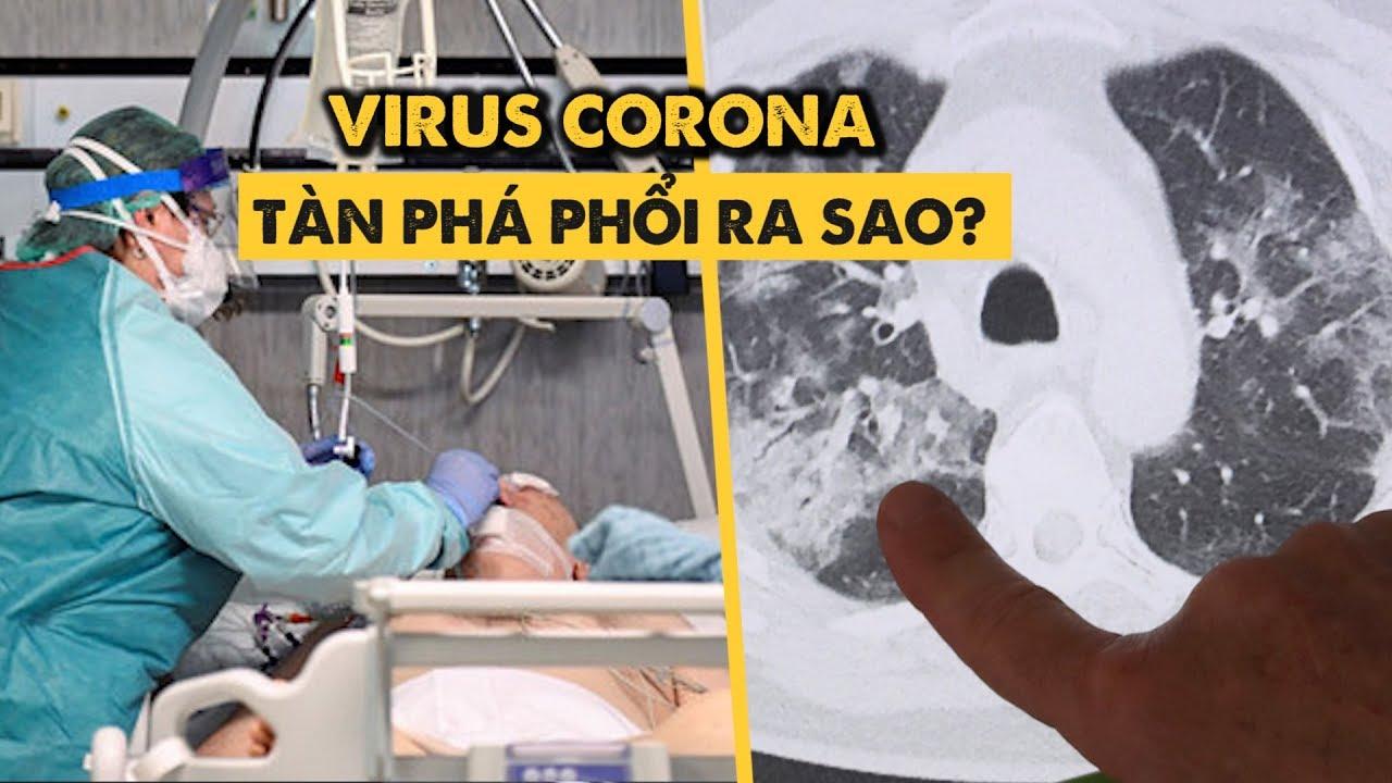 Những lá phổi của người nhiễm Covid-19 bị tàn phá ra sao?