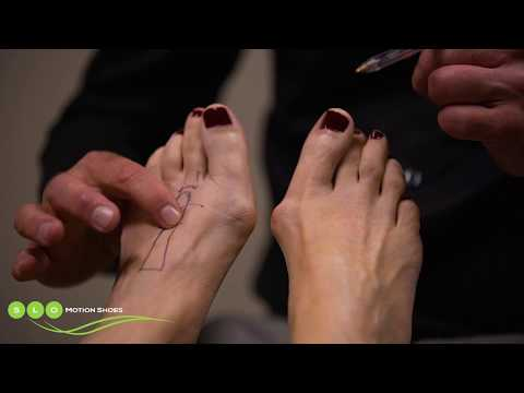 Metartasal Stress Fracture: Causes & Orthotic Management