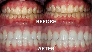 DON'T GO TO THE DENTIST!!! REMOVE WHITE SPOTS ON YOUR TEETH AT HOME WITHOUT THE HELP OF A DENTIST