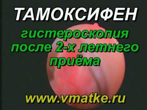 Железисто-фиброзный полип эндометрия и цервикального