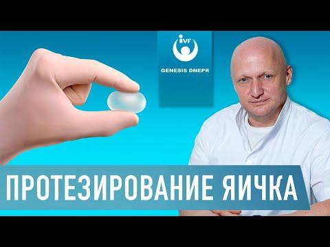 ПРОТЕЗИРОВАНИЕ ЯИЧКА У МУЖЧИН - мужская интимная пластика, протез яичка, имплант | Хирург Щевцов