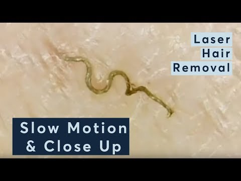 Laser Hair Removal In Slow Motion & Close Up