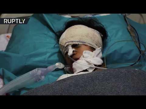 RT en Español: Los civiles heridos en los ataques aéreos turcos en Siria se recuperan en el hospital