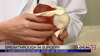 Local physician performs new shoulder joint replacement