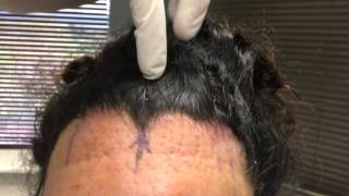 Endoscopic Brow Lift Post Op Care