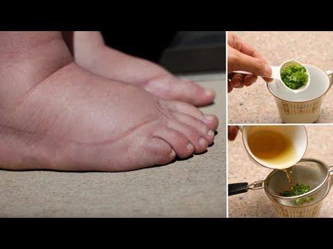 Этот мощный чай из петрушки — лучшее средство для опухших ног и рук!