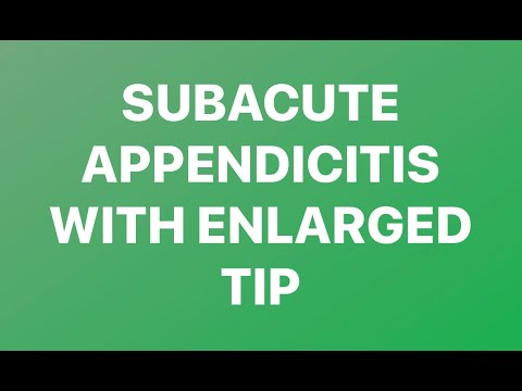 Subacute Appendicites With Inflammed Tip