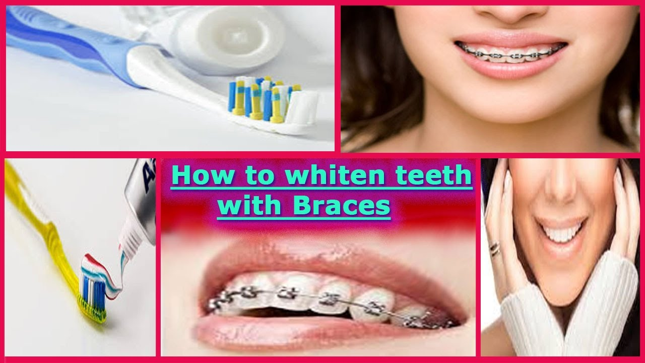 How To Whiten Teeth With Braces Suggestions To Whiten Teeth With