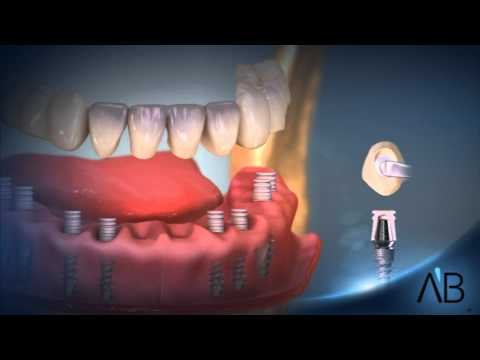 AB Dental Implants- All At Once technology - YouTube