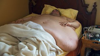 This Extremely Overweight Man Relies On His Fiancée For Everything