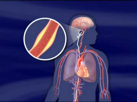 Endovascular Stroke Treatment-Mayo Clinic