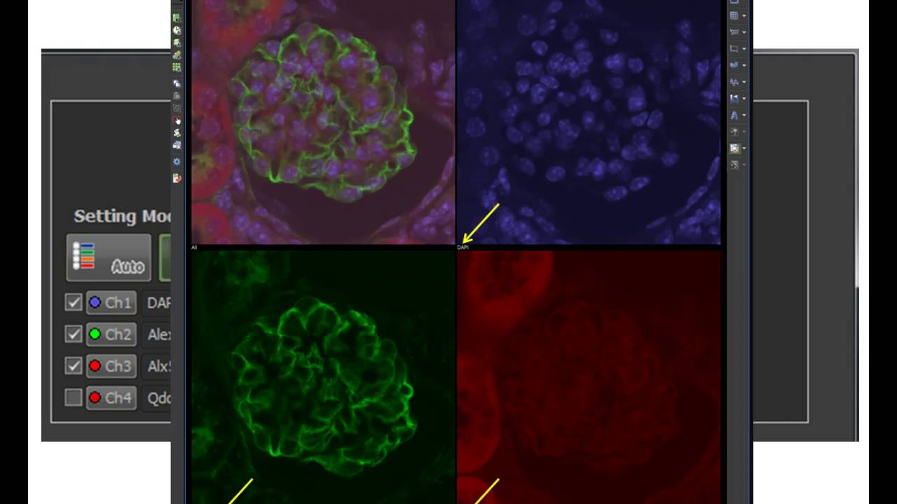 Basics in Nikon NIS-Elements for confocal microscopy