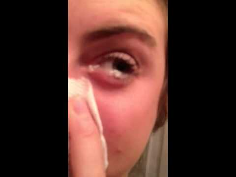 Mucus coming out of eye!!!