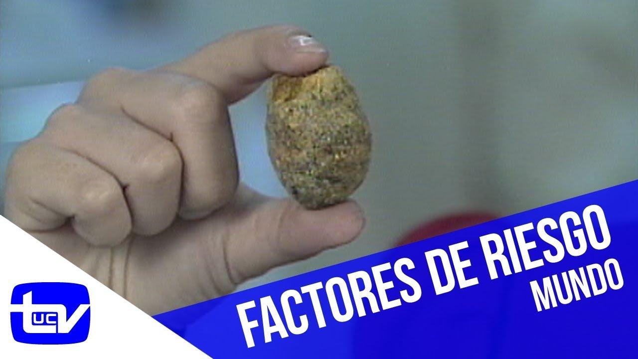 sintomas de una vesicula con piedras