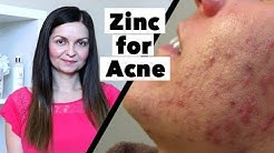 hqdefault - Should I Take Zinc For Acne