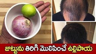 జుట్టును తిరిగి మొలిపించే ఉల్లిపాయ I Onion For Hair Growth I Health Tips  I Everything in Telugu