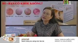 Kem trị mụn Azacné có hiệu quả không?