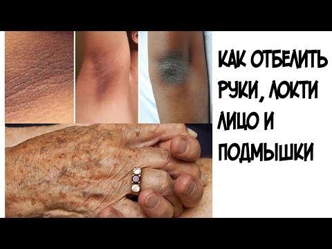 Как БЫСТРО отбелить руки, локти, лицо и подмышки