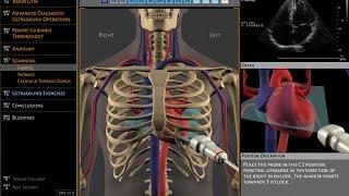 Basics of ultrasound machine