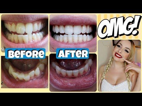 How I Got My Teeth STRAIGHT! | Price, Experience, etc!